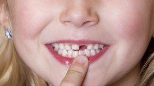 Cách chỉnh răng cửa
