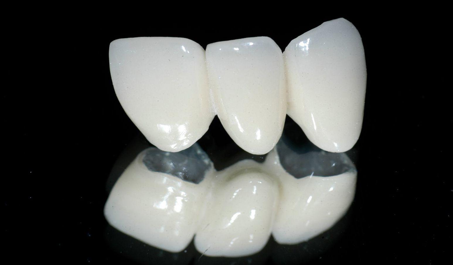 Cấu tạo của răng sứ cercon 2