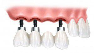 Chi phí trồng răng hàm hết bao nhiêu