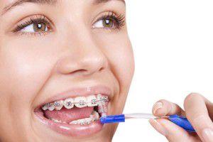 Chỉnh răng mất bao lâu ?