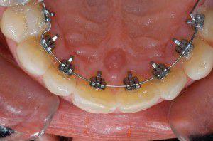 Chỉnh răng mặt trong bằng hợp chất quý kim