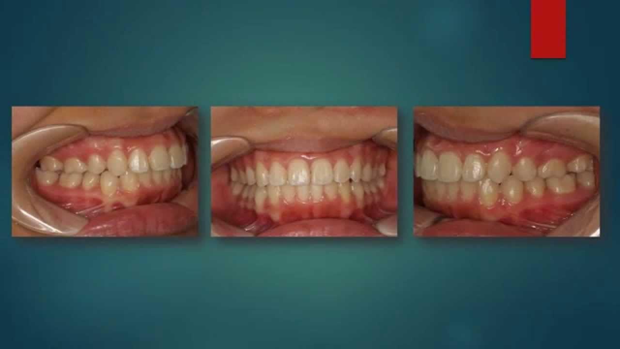 Chỉnh răng ở độ tuổi nào thì thích hợp nhất