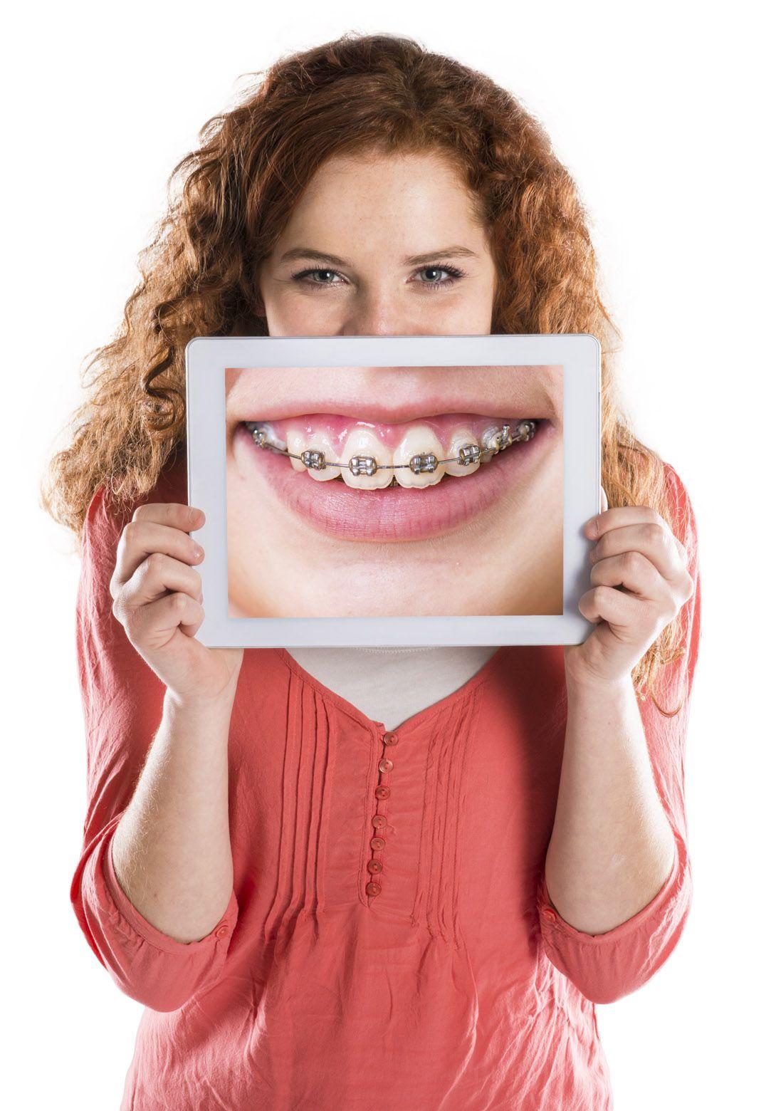Điều trị chỉnh hình răng hàm mặt ở trẻ em