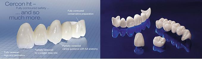 Răng sứ cercon và răng sứ titan có tốt không ?