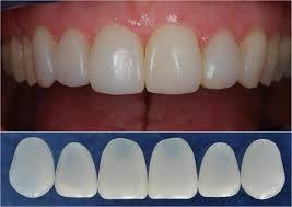 Mặt dán Veneer sứ - Phục hình thẩm mỹ răng thật