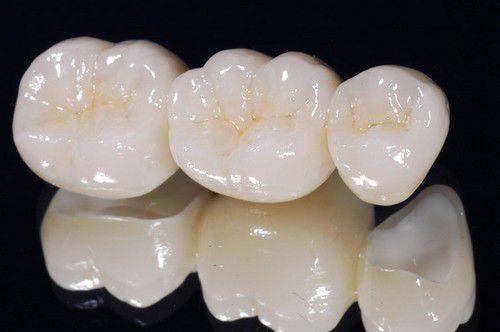 Một số loại răng sứ đẹp