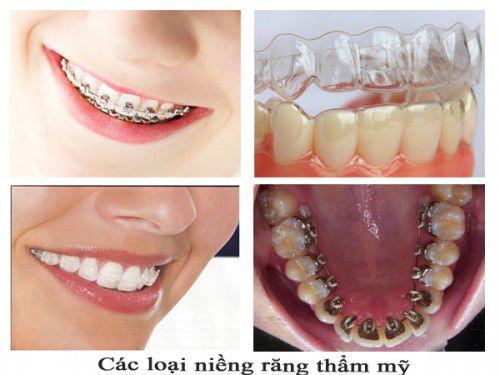Một số phương pháp nắn chỉnh răng