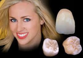 Nên hay không nên làm răng sứ titan