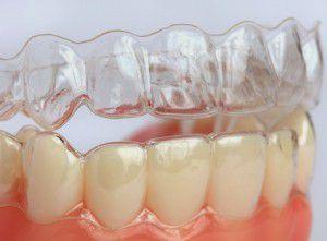 Niềng răng hô hàm dưới không mắc cài mất bao lâu