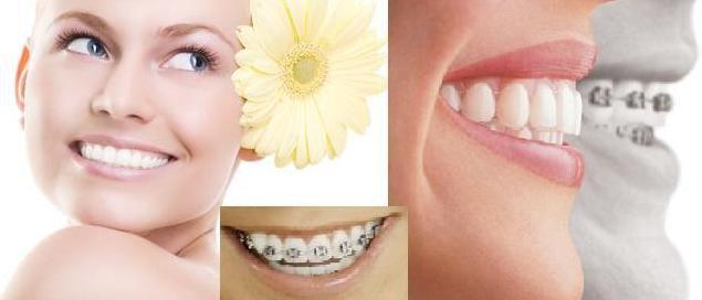 Phương pháp chỉnh nha niềng răng cho trường hợp hô