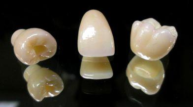Răng sứ titan có độ bền 15 năm 1