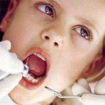 Răng sứ zirconia đẹp