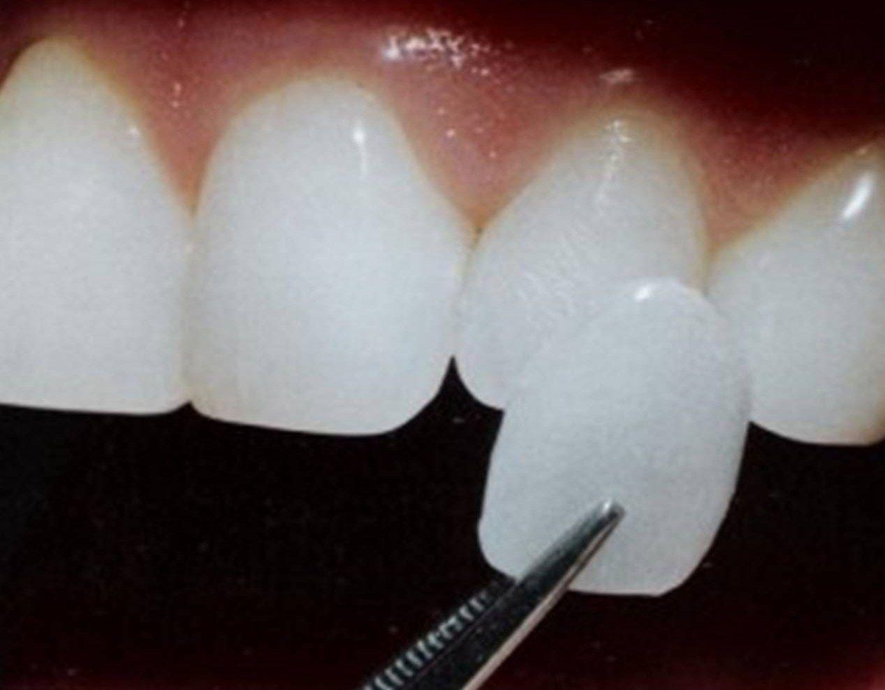 Tái tạo nụ cười với răng sứ Veneer 2