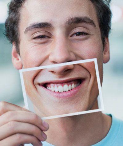 Tái tạo nụ cười với răng sứ Veneer 3