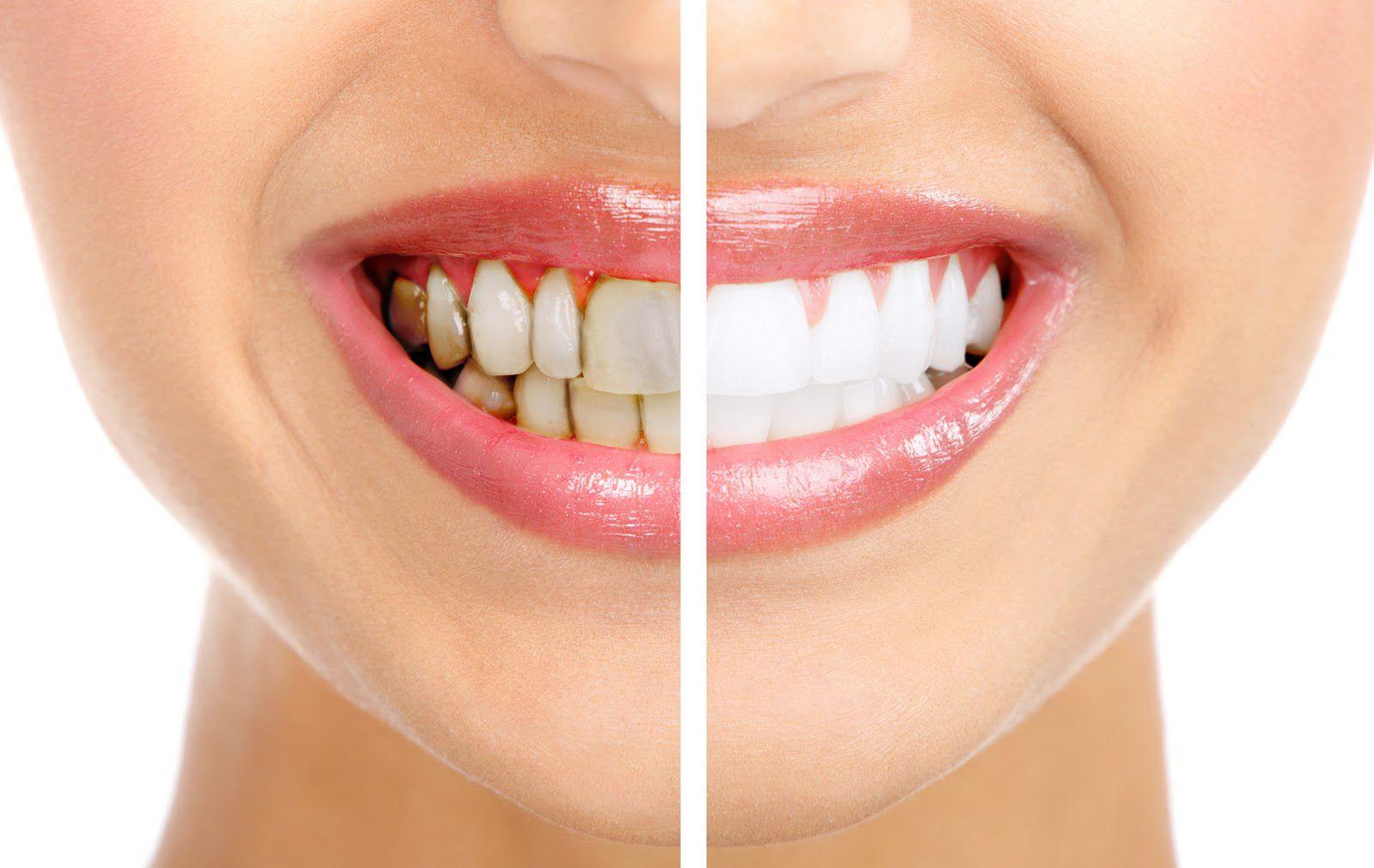 Tẩy trắng răng duy trì được bao lâu? 3