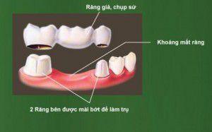 Trồng răng khi bị mất một răng