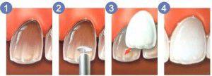 Trường hợp nào nên dán mặt răng sứ veneer