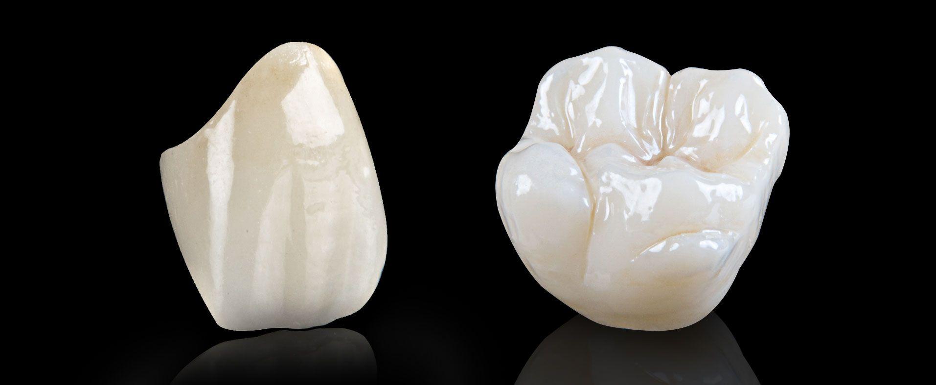 Vì sao nên dùng răng sứ