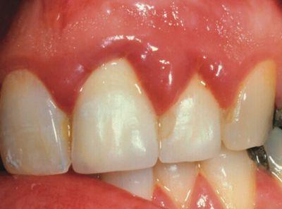 Bí quyết nào cho làm răng sứ mà không viêm lợi 1