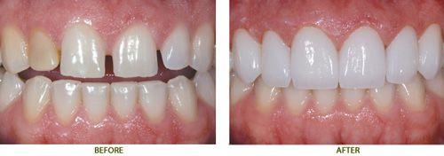 Bọc răng sứ Veneer 2