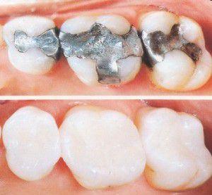 Bọc răng sứ và các lợi ích của nó