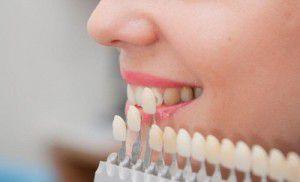 Các công nghệ tẩy trắng răng trong vòng 60 phút