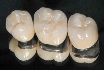 Độ bền của các loại răng sứ 1
