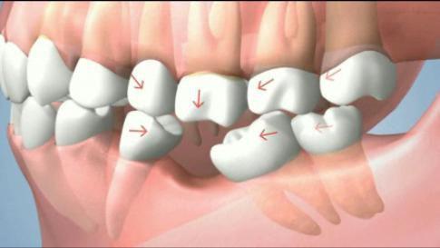 Hậu quả khôn lường khi bị mất răng 1