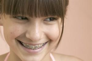 Những điều cần biết về niềng răng