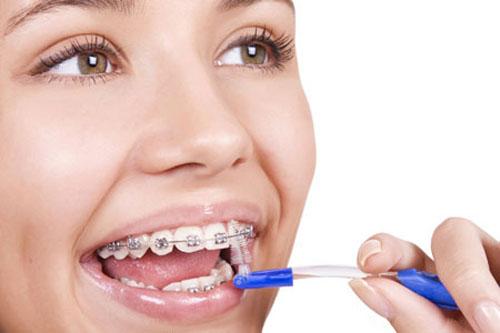 Những điều cần biết về niềng răng 2