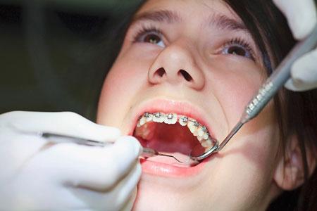 Niềng răng có làm răng yếu đi 3
