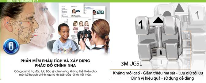 Niềng răng công nghệ tiêu chuẩn châu Âu 3M UGSL 3