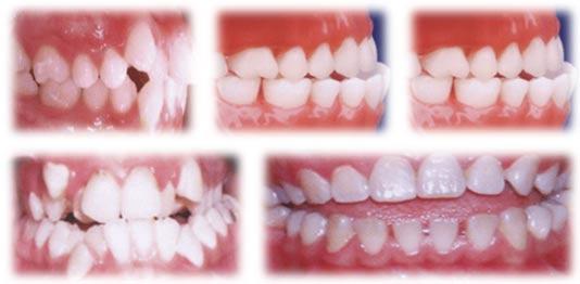 Niềng răng khểnh 3