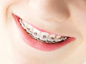 Niềng răng trong suốt với Invisalign và Clear Aligner