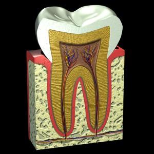 Răng chết tủy có nên bọc răng sứ?