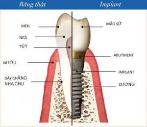 Răng implant nhai có tốt không?