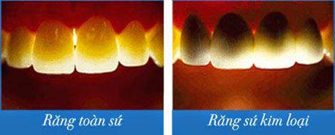 Răng sứ Cercon HT thay thế hoàn hảo cho răng thật
