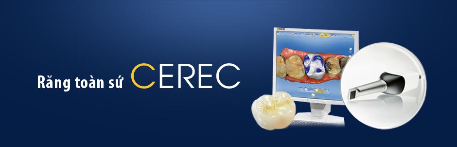 Răng toàn sứ Cerec CAD - CAM 1