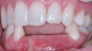 Sau khi nhổ răng bao lâu thì trồng răng giả được