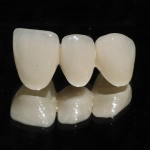 Tại sao nha sĩ thường khuyên dùng răng sứ Zirconia