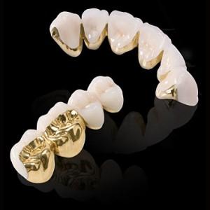 Tại sao răng sứ Titan lại có giá rẻ nhất