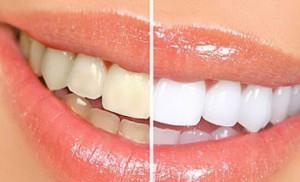 Tẩy trắng răng công nghệ Mỹ với hệ thống LumaCool