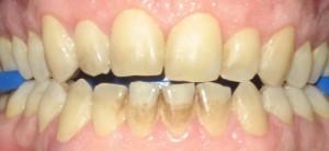 Thắc mắc thường gặp khi tẩy trắng răng