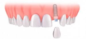 Thông tin chung về trồng răng sứ bằng cấy ghép Implant