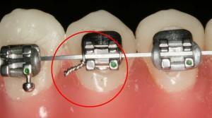 Tìm hiểu ưu điểm của niềng răng mắc cài tự buộc