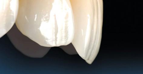 Tìm hiểu về các loại răng sứ cao cấp