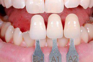 Bọc răng sứ có thể bị tai biến?
