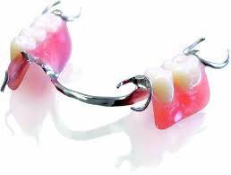 Chăm sóc răng miệng sau khi lắp răng giả tháo lắp