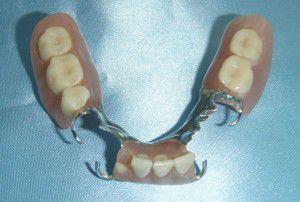 Phương pháp trồng răng sứ nào tốt?