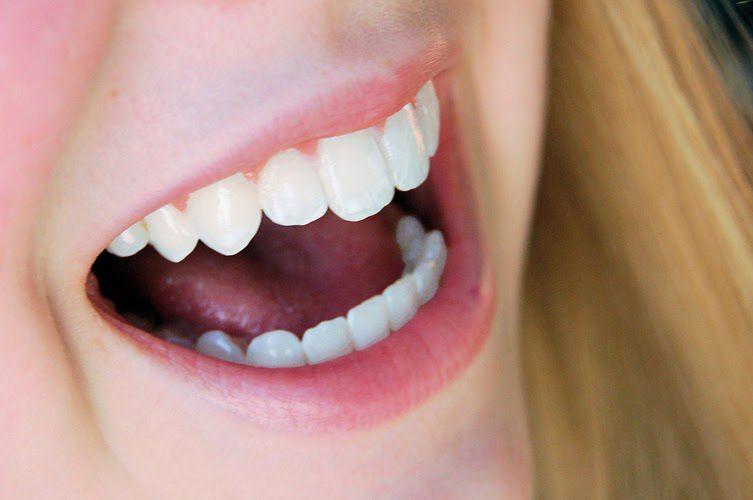 Răng sứ Cercon tốt như thế nào? 3